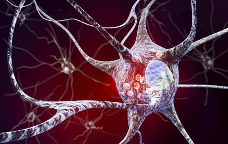 neurons-in-parkinson-s-disease